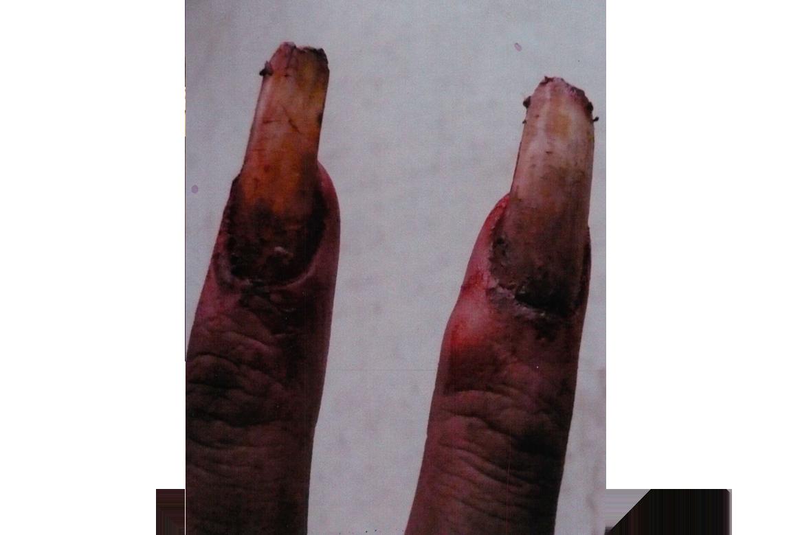 dead fingernails special effects makeup