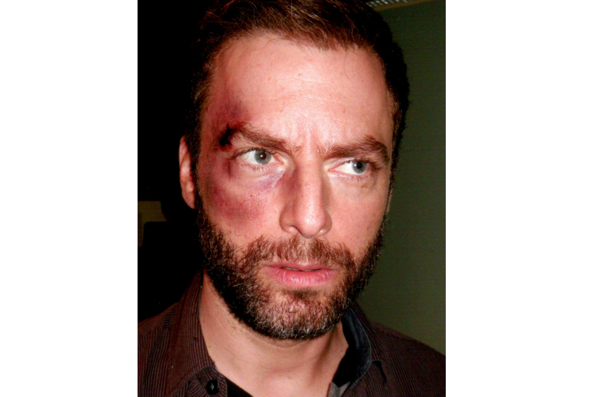 eye bruised cut injured makeup
