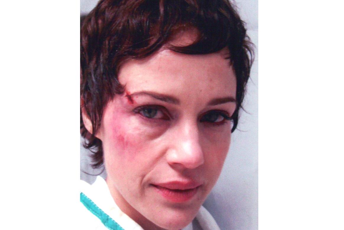 hurt face makeup