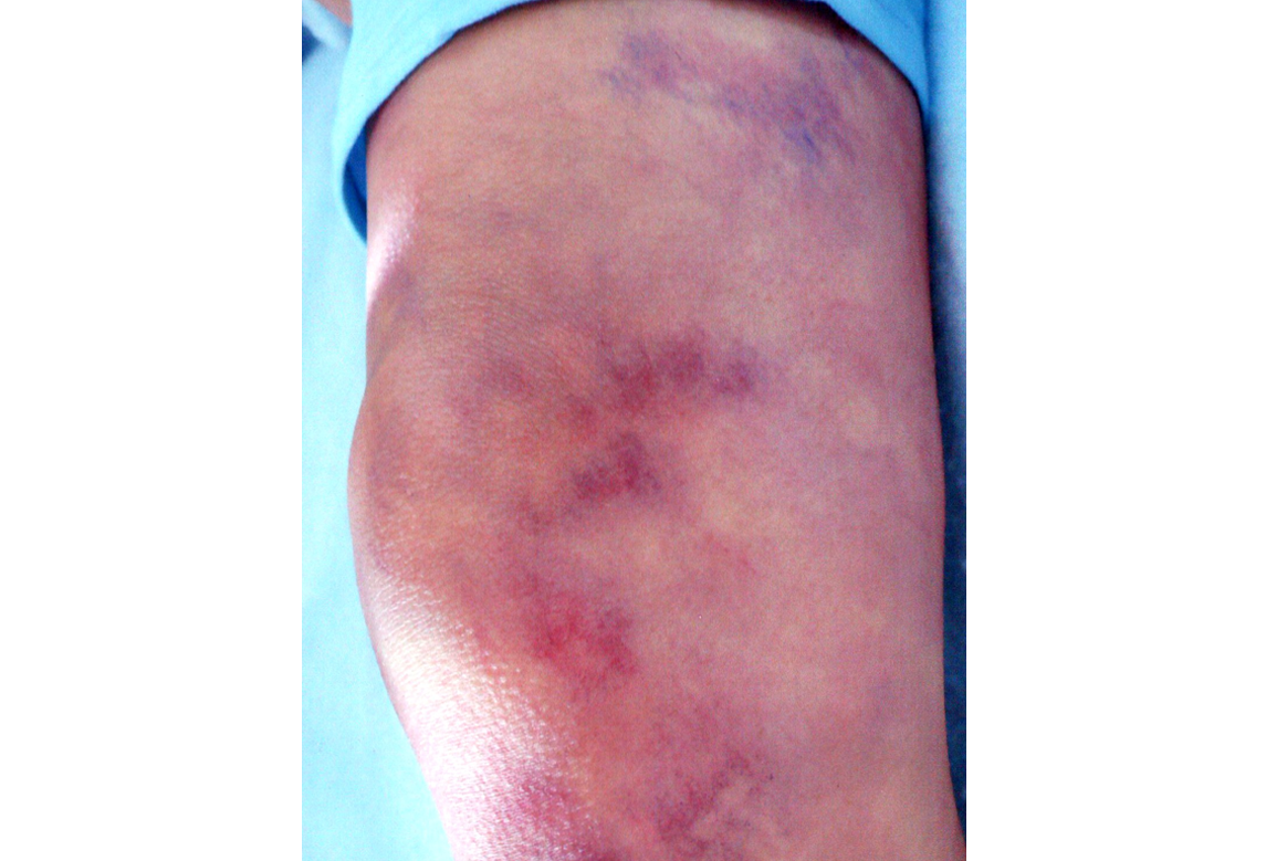 bruising on knee makeup
