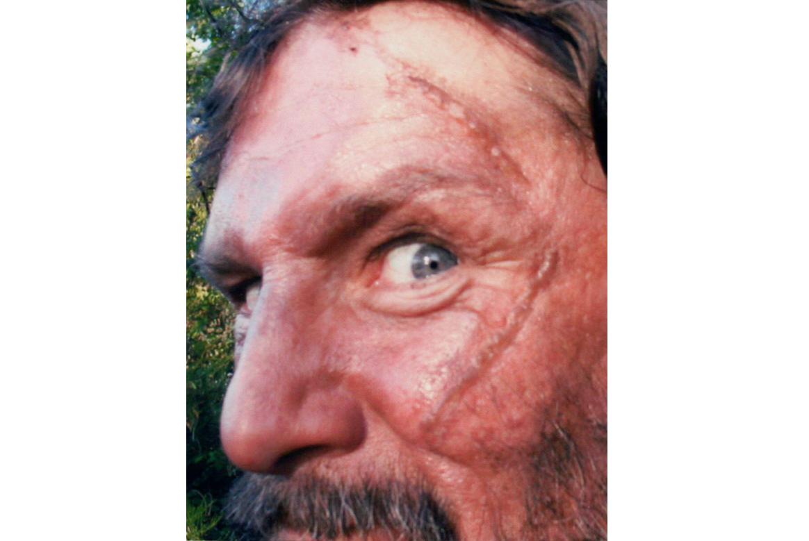 makeup scar face