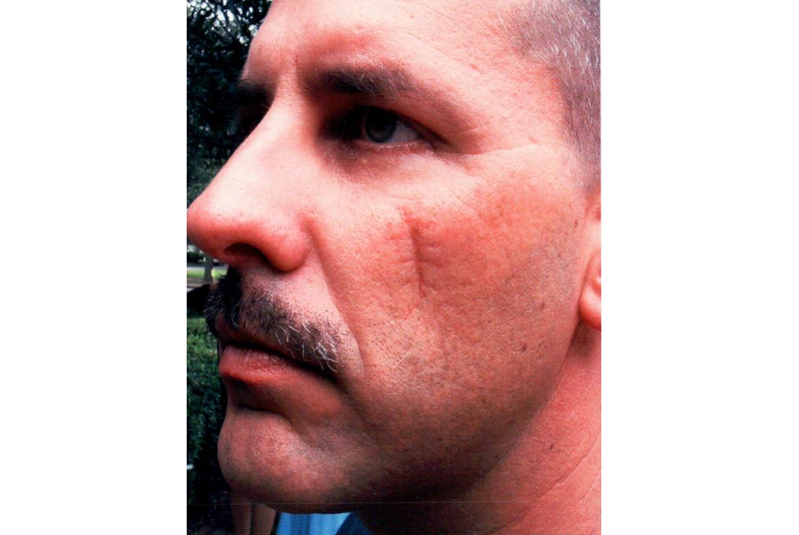 scar face makeup